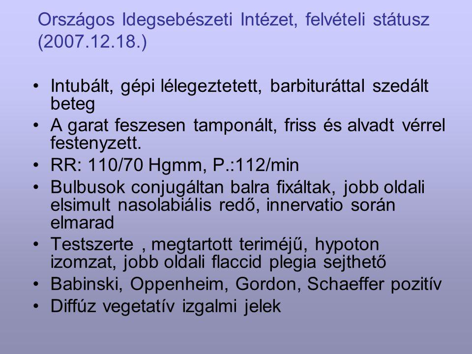 Országos Idegsebészeti Intézet, felvételi státusz (2007.12.18.) Intubált, gépi lélegeztetett, barbituráttal szedált beteg A garat feszesen tamponált,