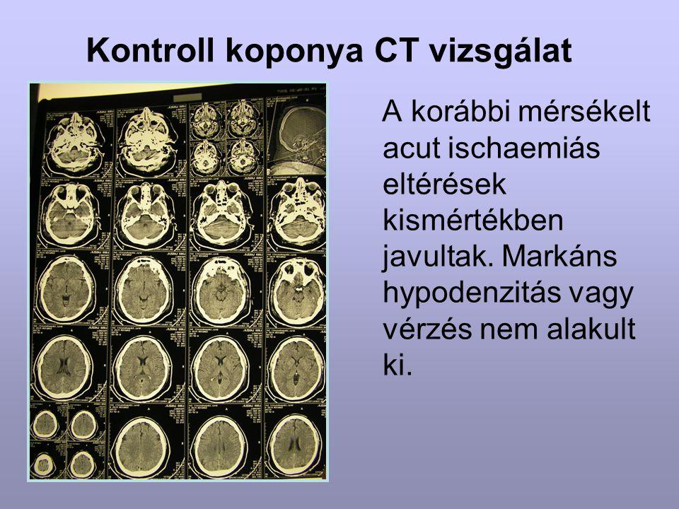 Kontroll koponya CT vizsgálat A korábbi mérsékelt acut ischaemiás eltérések kismértékben javultak. Markáns hypodenzitás vagy vérzés nem alakult ki.