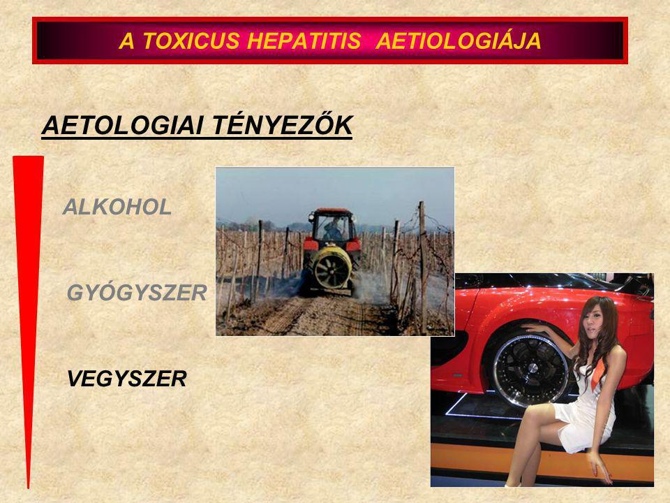 AETOLOGIAI TÉNYEZŐK ALKOHOL GYÓGYSZER VEGYSZER A TOXICUS HEPATITIS AETIOLOGIÁJA