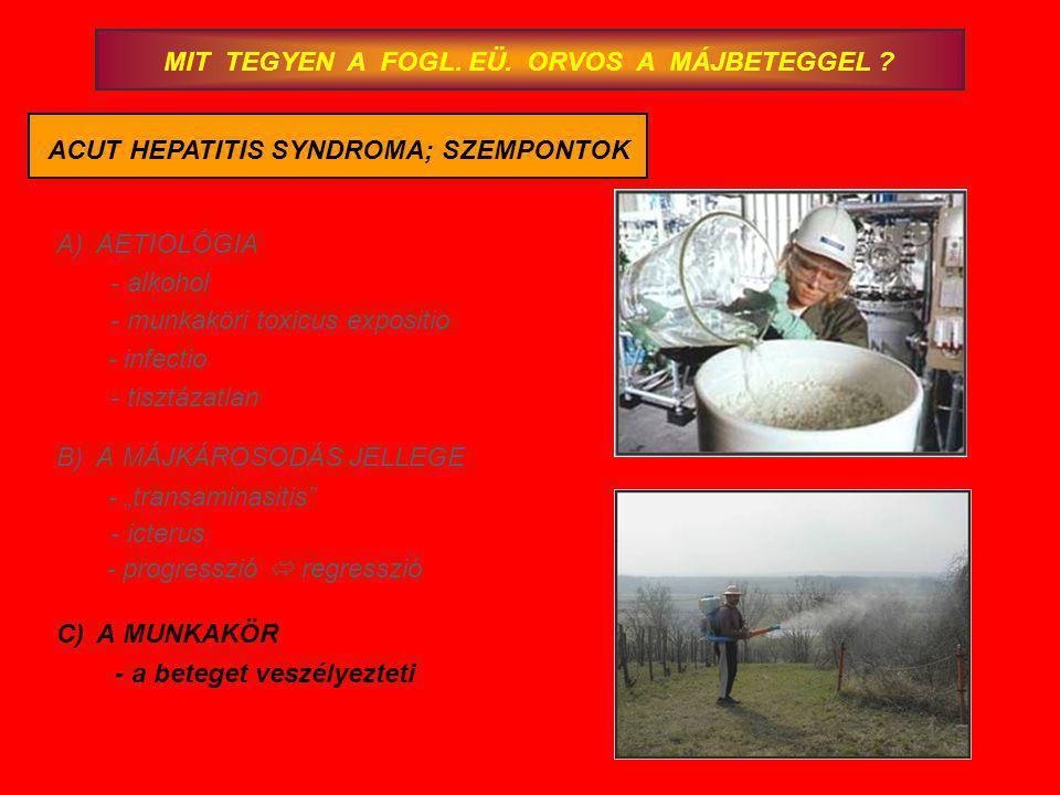 MIT TEGYEN A FOGL. EÜ. ORVOS A MÁJBETEGGEL ? ACUT HEPATITIS SYNDROMA; SZEMPONTOK A)AETIOLÓGIA - alkohol - munkaköri toxicus expositio - infectio - tis