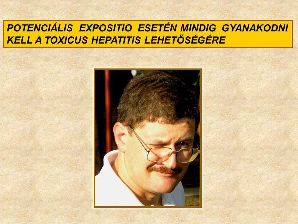 POTENCIÁLIS EXPOSITIO ESETÉN MINDIG GYANAKODNI KELL A TOXICUS HEPATITIS LEHETŐSÉGÉRE