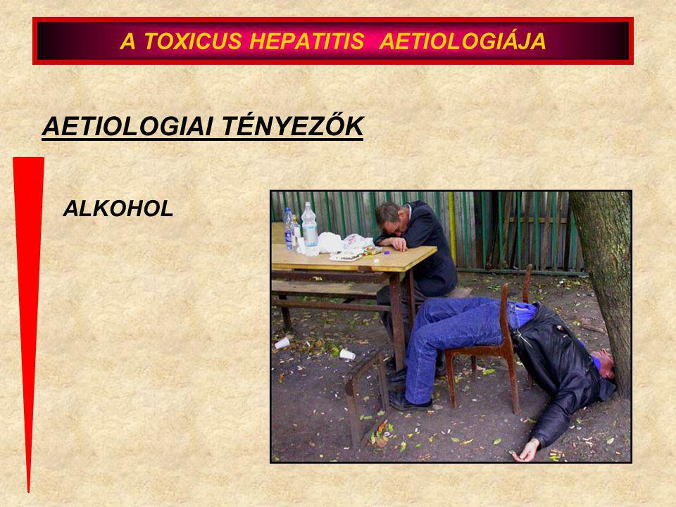4.) a gyanus szer azonnali elhagyása; a dolgozó kiemelése munkaköréből 5.) a differenciáldiagnosztikai vizsgálatok elvégzése UH, CT, ERCP, virus serologia, immunologia, anyagcsere, toxikologia A TOXIKUS HEPATITISEK DIAGNOZISA