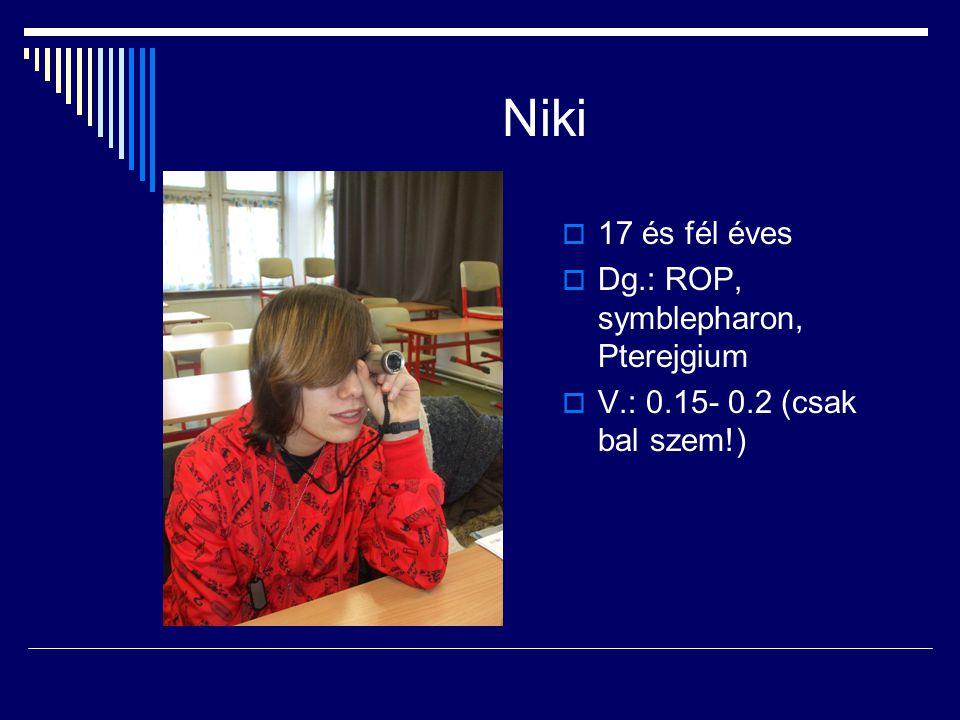 Niki  17 és fél éves  Dg.: ROP, symblepharon, Pterejgium  V.: 0.15- 0.2 (csak bal szem!)