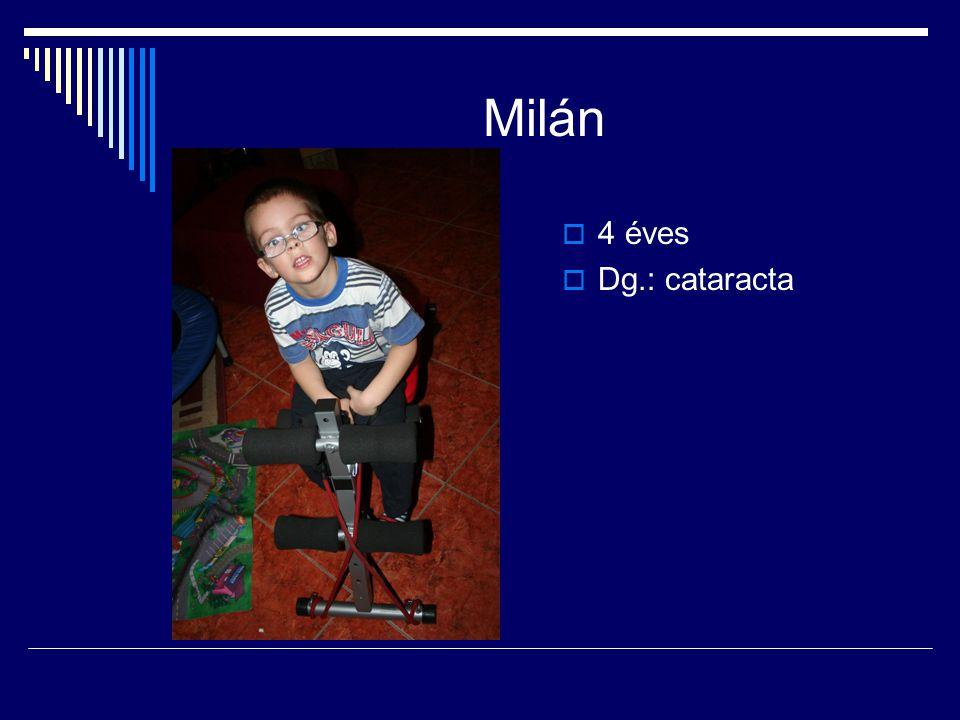Milán  4 éves  Dg.: cataracta