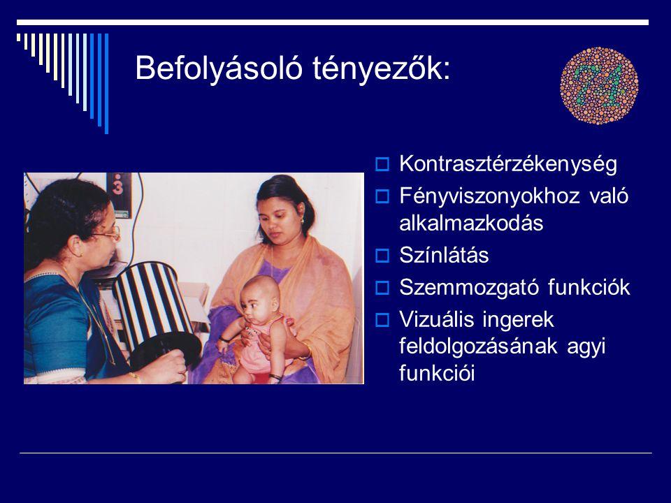 Befolyásoló tényezők:  Kontrasztérzékenység  Fényviszonyokhoz való alkalmazkodás  Színlátás  Szemmozgató funkciók  Vizuális ingerek feldolgozásán