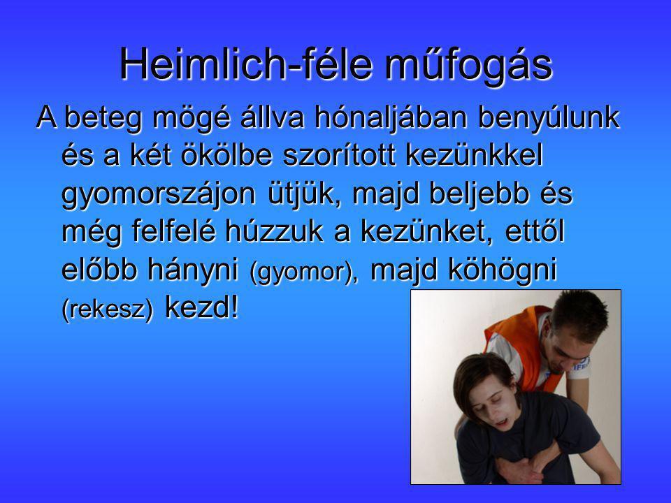 Heimlich-féle műfogás A beteg mögé állva hónaljában benyúlunk és a két ökölbe szorított kezünkkel gyomorszájon ütjük, majd beljebb és még felfelé húzz