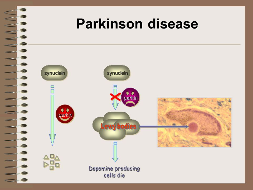 Parkinson disease synucleinsynuclein parkin parkin Dopamine producing cells die