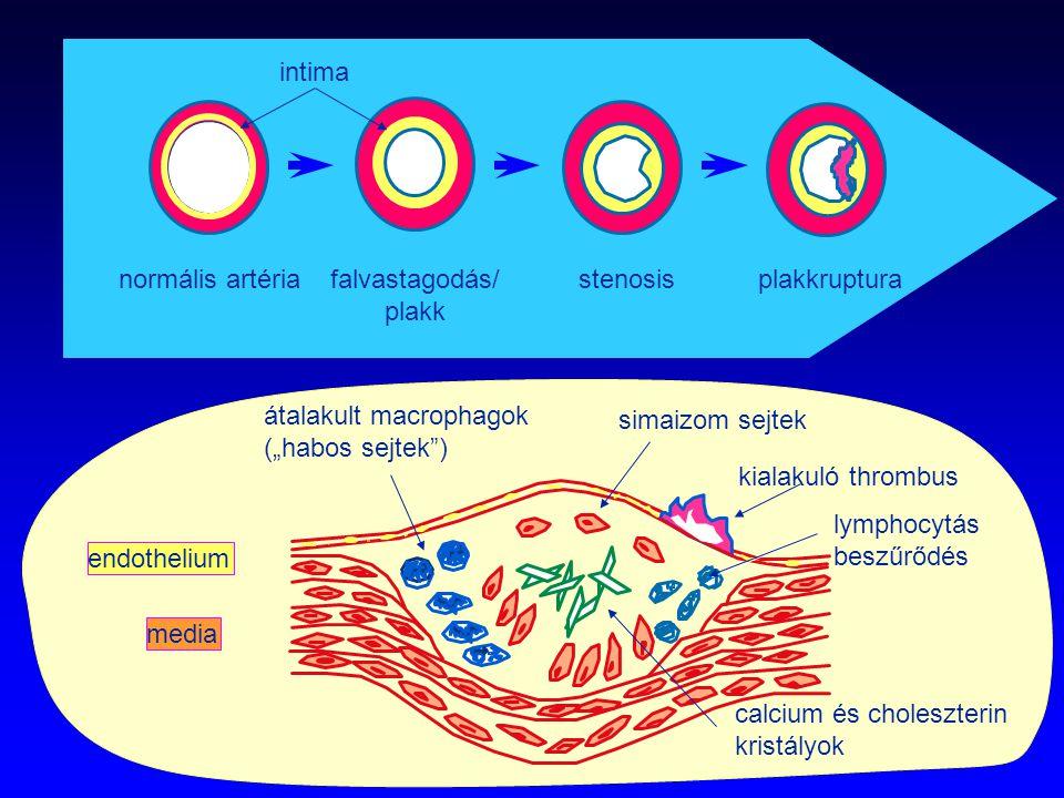 """endothelium simaizom sejtek átalakult macrophagok (""""habos sejtek"""") kialakuló thrombus media lymphocytás beszűrődés intima normális artériafalvastagodá"""