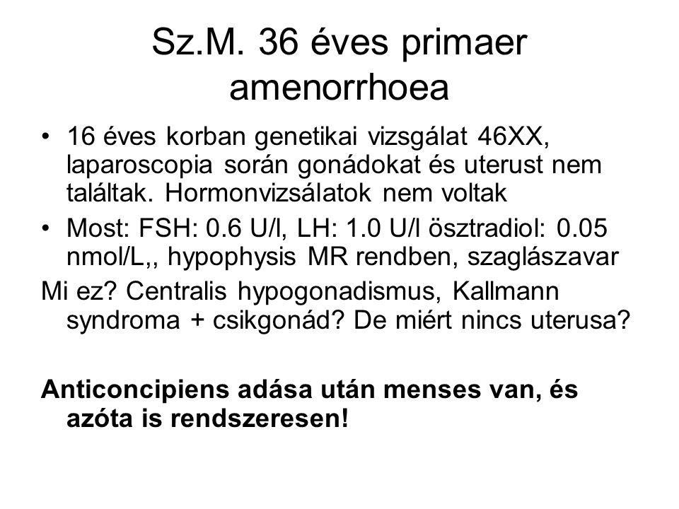 Sz.M. 36 éves primaer amenorrhoea 16 éves korban genetikai vizsgálat 46XX, laparoscopia során gonádokat és uterust nem találtak. Hormonvizsálatok nem