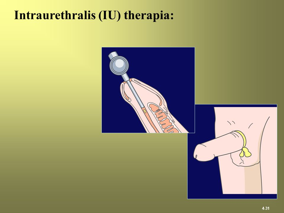 4-31 Intraurethralis (IU) therapia: