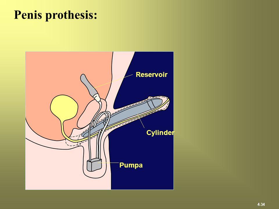 4-34 Penis prothesis: Reservoir Cylinder Pumpa