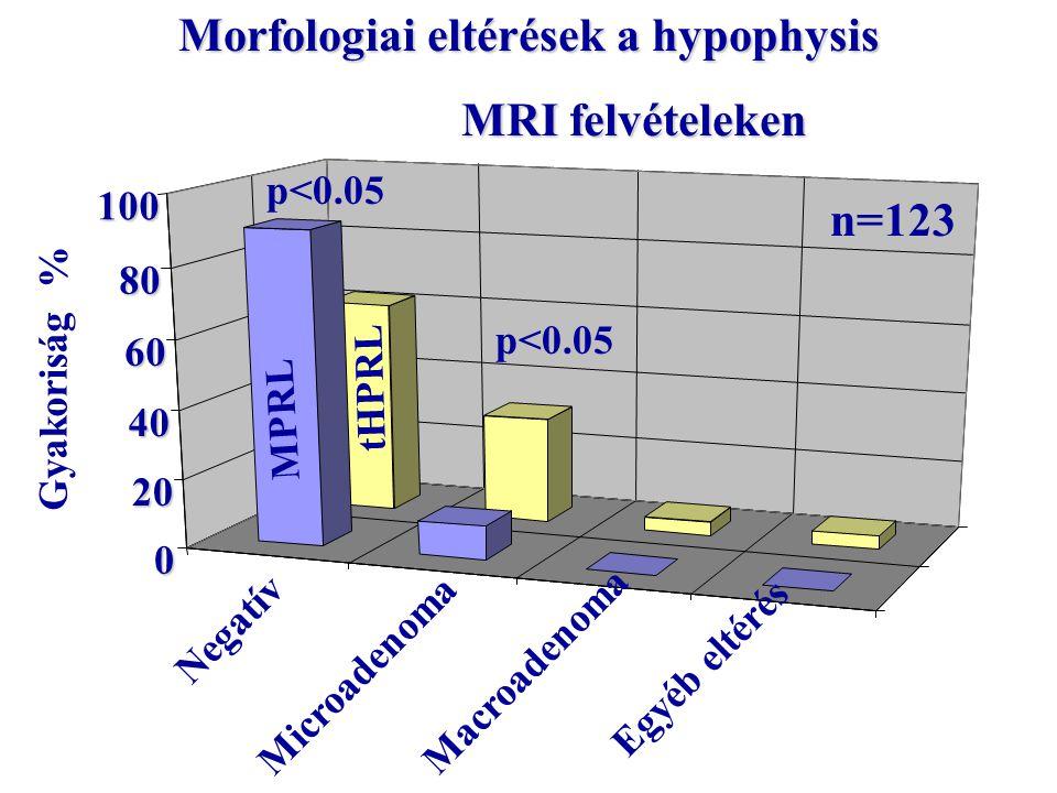 0 20 40 60 80 100 Morfologiai eltérések a hypophysis MRI felvételeken MRI felvételeken Negatív Microadenoma Macroadenoma Egyéb eltérés Gyakoriság % tHPRL MPRL p<0.05 n=123