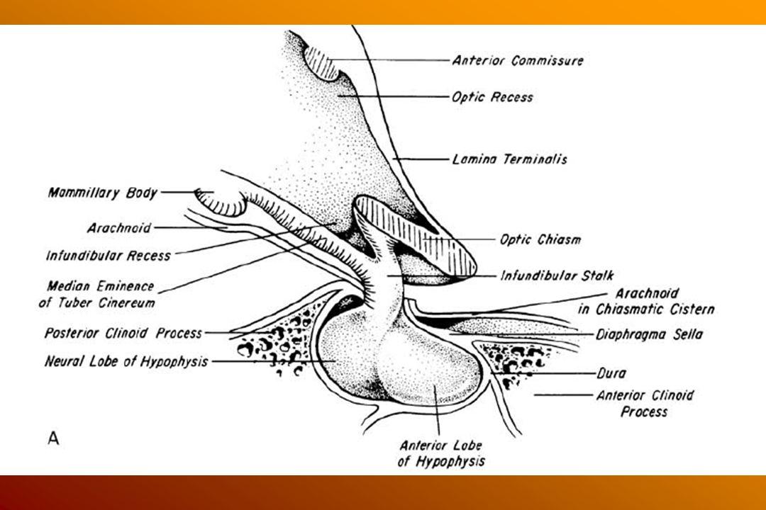 Izolált hypophysis szindróma A nyél-destructio okai: trauma, műtét, tumor, granuloma 80%-ban DI, –a laesio szintjétől függ (minél alacsonyabban van a laesio, minél több idegsejt-terminalis megtartott, annál ritkább a DI) –3-fázis, 7-10 nap alatt lezajlik (kevesebb, mint a betegek felénél 1: polyuria – a neurogén kontroll kiesése 2: vasopressin release 3: vasopressin elégtelenség –egyidejű cortisol-hiány elfedi –recovery: hónapok-évek múltán is lehetséges, mert az idegsejt nyúlványok belenőhetnek a nyél csonkjába centralis hypadrenia, Metopyron tesztre csökkent ACTH válasz, de megtartott stressz-indukálta ACTH release, mert az CRF independens is hypothalamikus hypothyreosis GH hiány (legérzékenyebb jel) Hyperprolactinaemia: TRH-ra nem emelkedik, de megtartott a pulsatilitasa részleges izolált hypophysis szindróma lehet: empty sella sy., intrasellaris cysta, hypophysis tumor