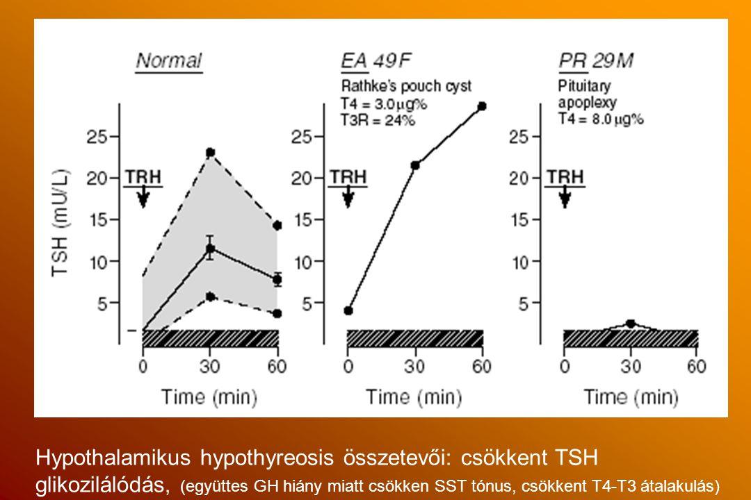 Hypothalamikus hypothyreosis összetevői: csökkent TSH glikozilálódás, (együttes GH hiány miatt csökken SST tónus, csökkent T4-T3 átalakulás)