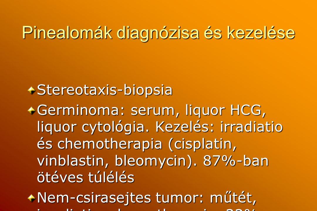 Pinealomák diagnózisa és kezelése Stereotaxis-biopsia Germinoma: serum, liquor HCG, liquor cytológia. Kezelés: irradiatio és chemotherapia (cisplatin,