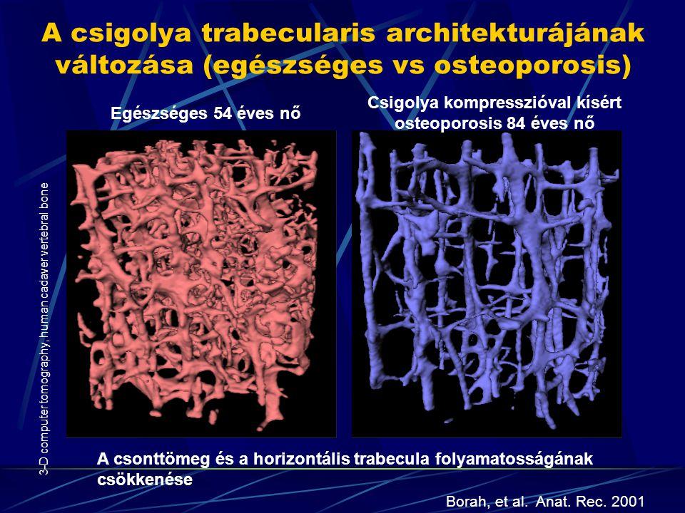 A csigolya trabecularis architekturájának változása (egészséges vs osteoporosis) Egészséges 54 éves nő Csigolya kompresszióval kísért osteoporosis 84