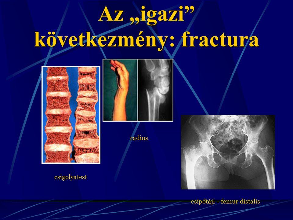 """Az """"igazi"""" következmény: fractura csigolyatest radius csípőtáji - femur distalis"""