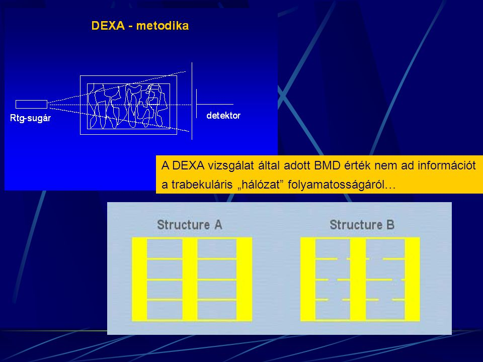 """A DEXA vizsgálat által adott BMD érték nem ad információt a trabekuláris """"hálózat"""" folyamatosságáról…"""