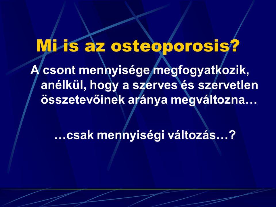 A témák Osteoporosis új definíciói, de régi felosztása… és az ebből adódó hiba lehetőségek… A klinikai diagnózis alapja a törés és/vagy a fájdalom.