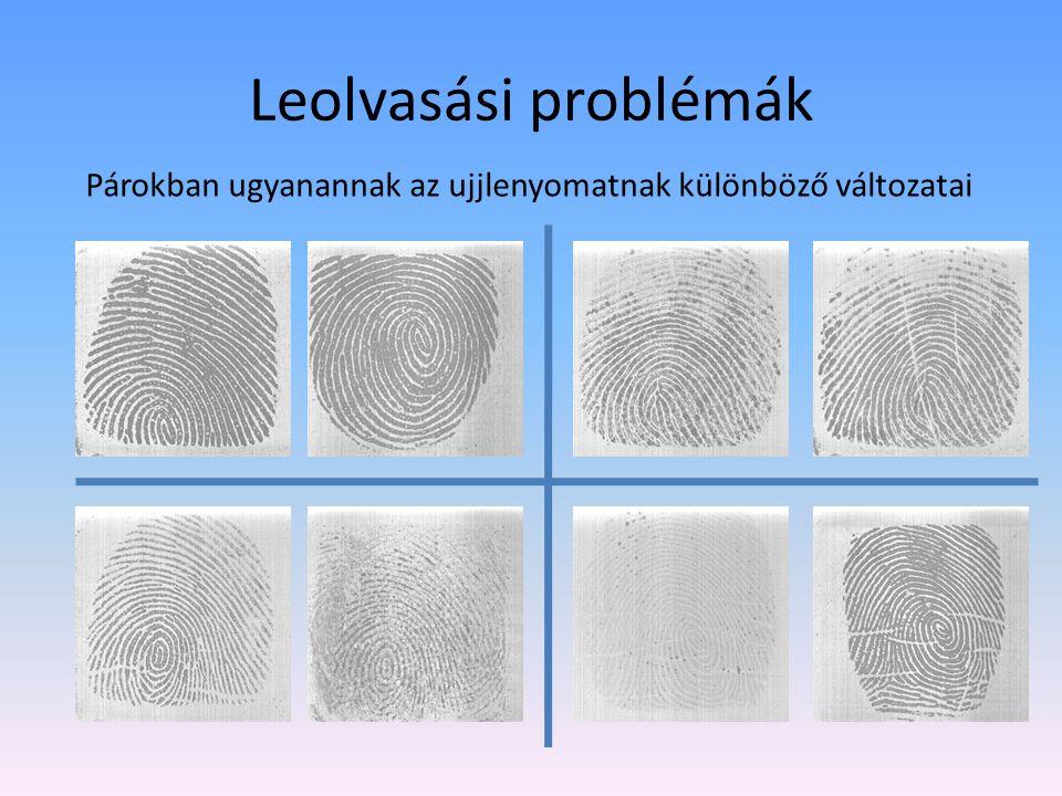 Ujjlenyomat globális jellemzői Fodor szálak, jellemző mintáik, szinguláris pontok Boltozat (arch)(3%) Hurok (loop)(72%) Örvény (whorl)(25%)