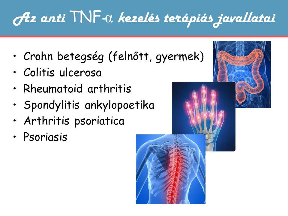Az anti TNF - α kezelés terápiás javallatai Crohn betegség (felnőtt, gyermek) Colitis ulcerosa Rheumatoid arthritis Spondylitis ankylopoetika Arthriti