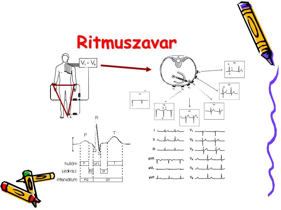 Ritmuszavar 6. ábra A normális EKG-görbe 7. ábra A 12 elvezetéses EKG- felvétel