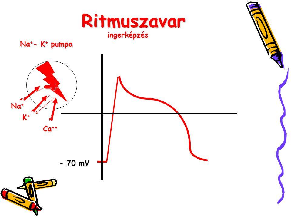 Ritmuszavar - 70 mV Na + K+K+K+K+ Ca ++ - nyugalmi potenciál + depolarizáció repolarizáció ingerképzés