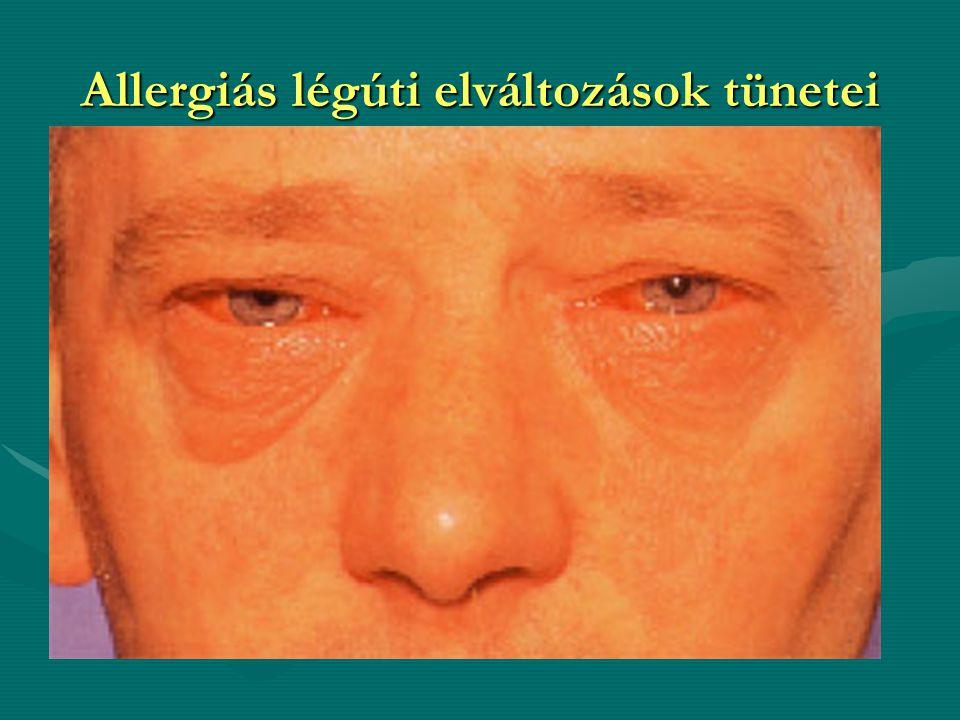 Allergiás légúti elváltozások tünetei
