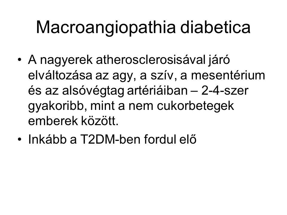 Diabeteses láb- komplex szövődmény