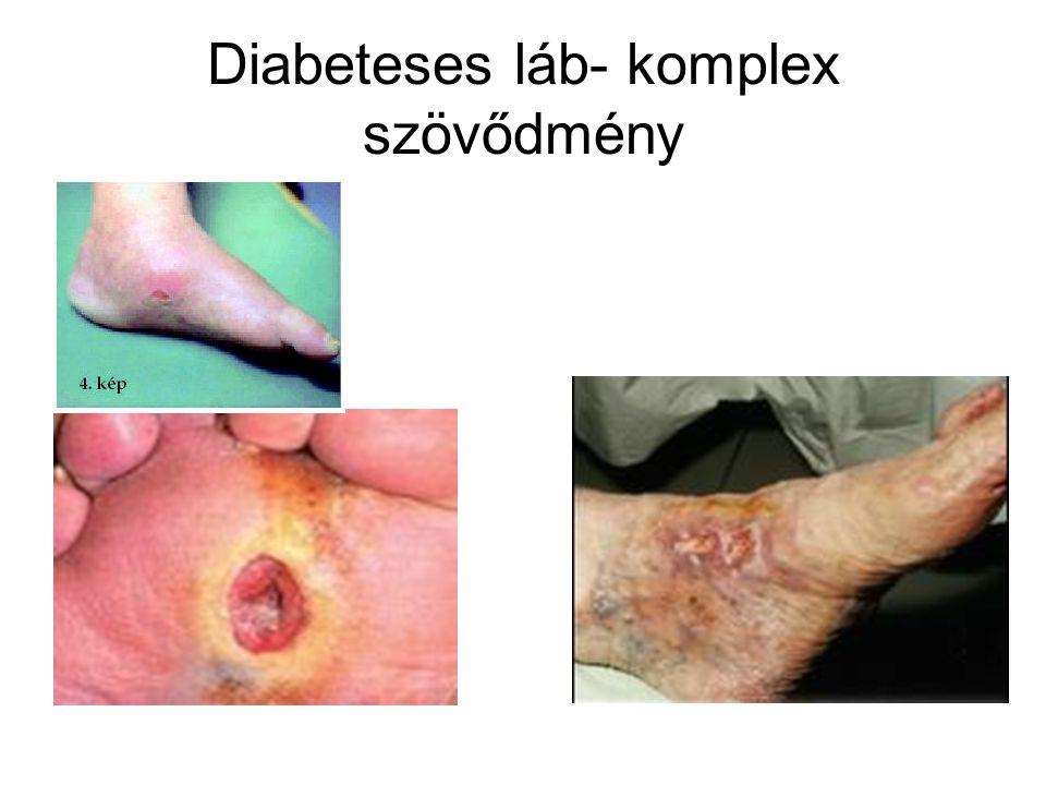 Akut szövődmények Hyperglycaemia Hypoglyacemia