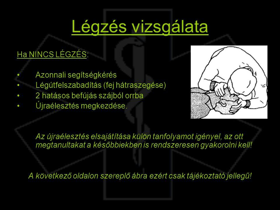 Légzés vizsgálata Ha NINCS LÉGZÉS: Azonnali segítségkérés Légútfelszabadítás (fej hátraszegése) 2 hatásos befújás szájból orrba Újraélesztés megkezdés