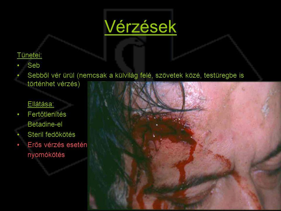 Vérzések Tünetei: Seb Sebből vér ürül (nemcsak a külvilág felé, szövetek közé, testüregbe is történhet vérzés) Ellátása: Fertőtlenítés Betadine-el Ste