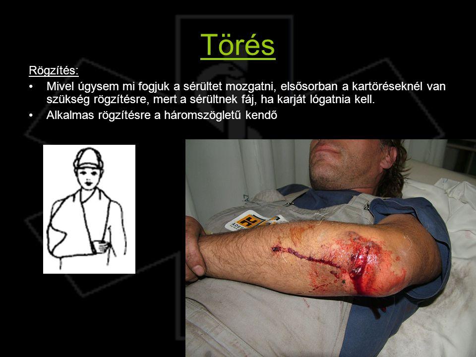 Törés Rögzítés: Mivel úgysem mi fogjuk a sérültet mozgatni, elsősorban a kartöréseknél van szükség rögzítésre, mert a sérültnek fáj, ha karját lógatni