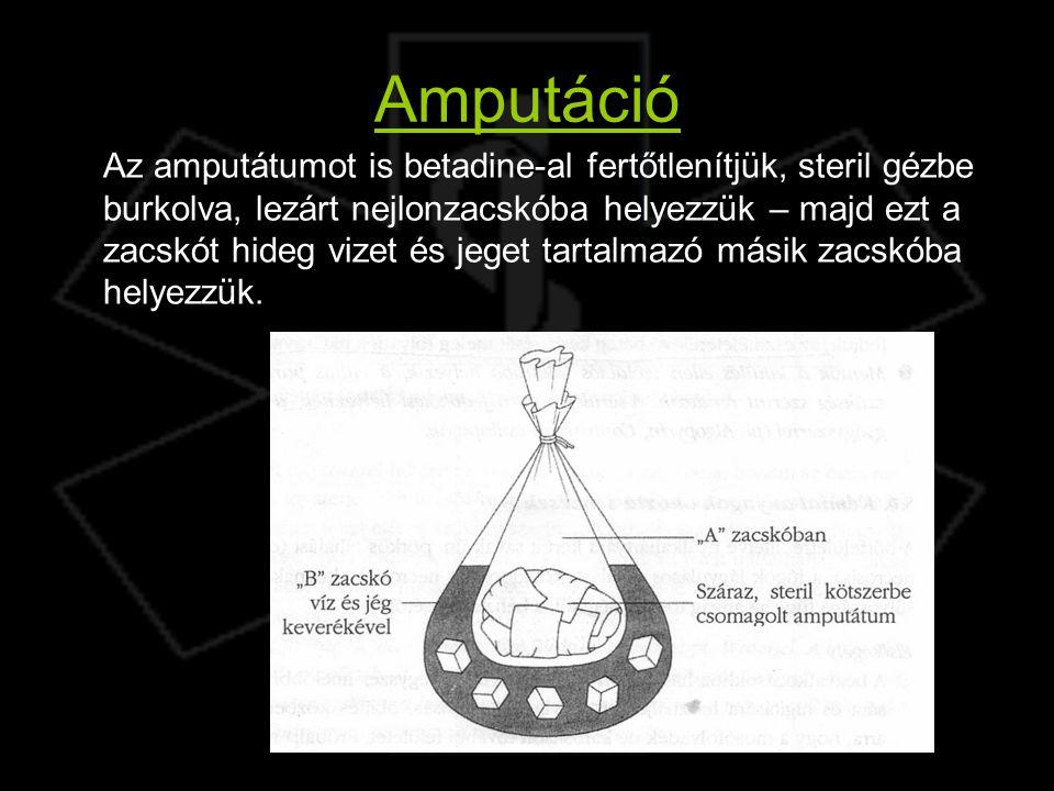 Amputáció Az amputátumot is betadine-al fertőtlenítjük, steril gézbe burkolva, lezárt nejlonzacskóba helyezzük – majd ezt a zacskót hideg vizet és jeg