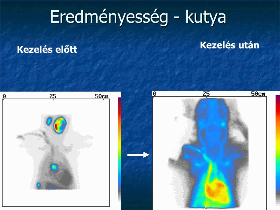 Radiojódterápia 2. Nagy dózisok (3-5 mCi – 150 mCi) Nagy dózisok (3-5 mCi – 150 mCi) Egyedi dózisszámítások a tumorméretek (pm lebeny méretek) alapján
