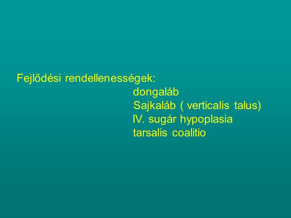 Fejlődési rendellenességek: dongaláb Sajkaláb ( verticalis talus) IV. sugár hypoplasia tarsalis coalitio