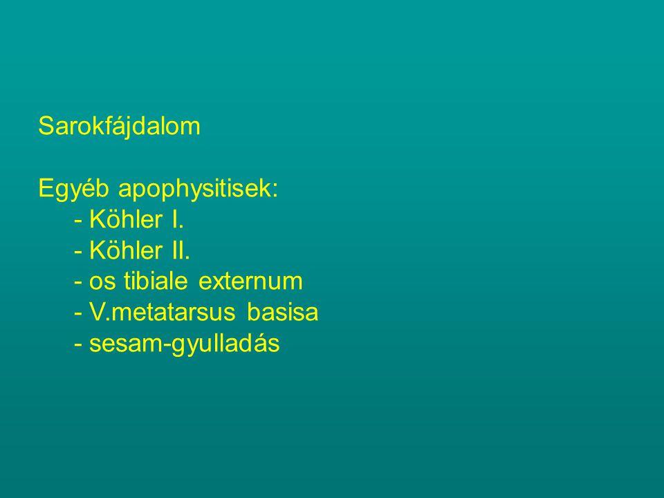 Sarokfájdalom Egyéb apophysitisek: - Köhler I. - Köhler II. - os tibiale externum - V.metatarsus basisa - sesam-gyulladás
