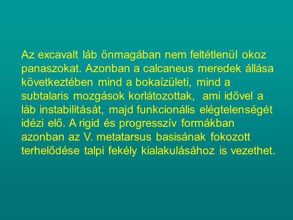 Az excavalt láb önmagában nem feltétlenül okoz panaszokat. Azonban a calcaneus meredek állása következtében mind a bokaízületi, mind a subtalaris mozg