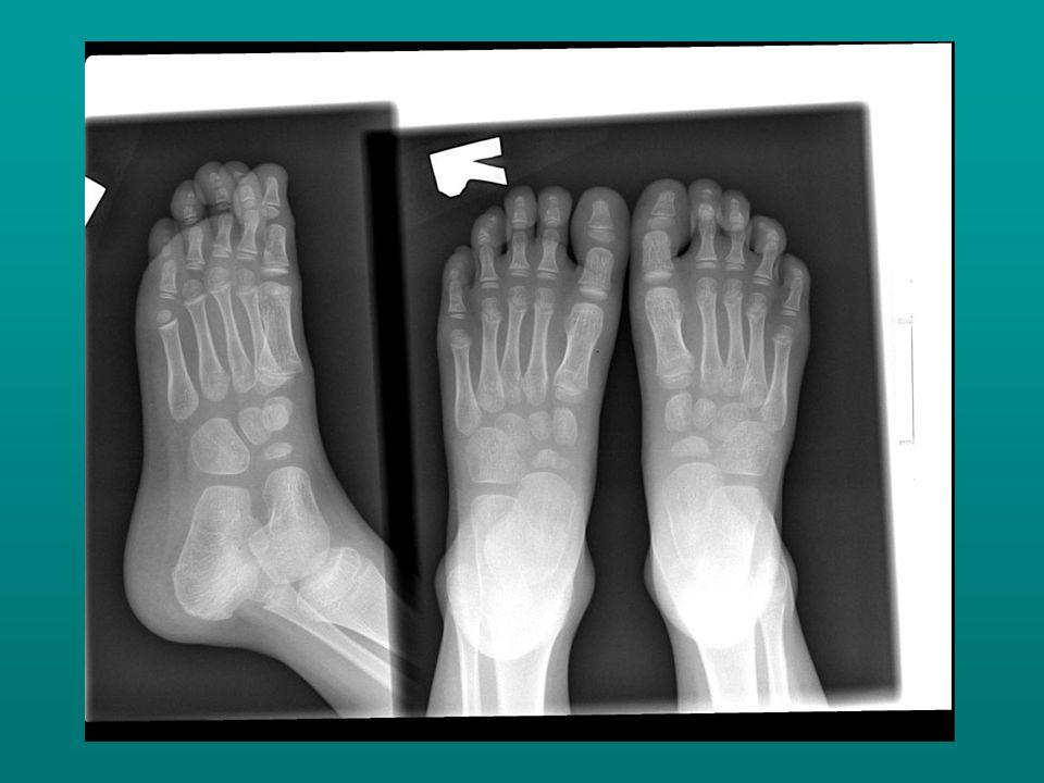 A gyermekkori lúdtalp kezelésében alapvető, hogy a növekedés időszakában a láb csontjai megfelelő irányból kapják a terhelést, illetve a növekedési ingert, a normális csontos váz kialakítása és az ízületi működések biztosítása érdekében.