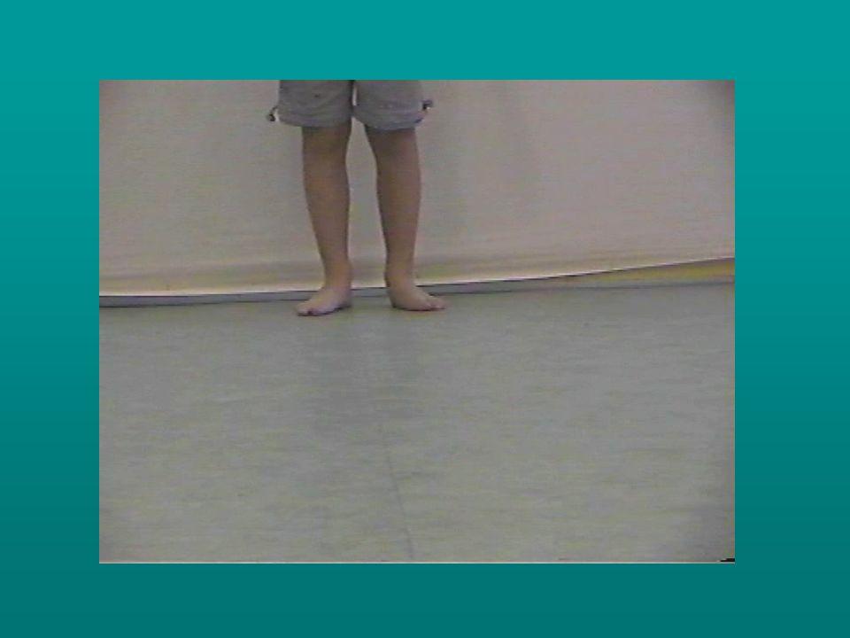 Extrém mértékű calcaneovalgitás a láb rotácio- adszorbeáló képességének hiányát eredményezi, aminek a következménye a jelentős AV-I kirotatio, illetve a berotatio hiánya a járás során, vagyis a láb funkcionális elégtelensége.