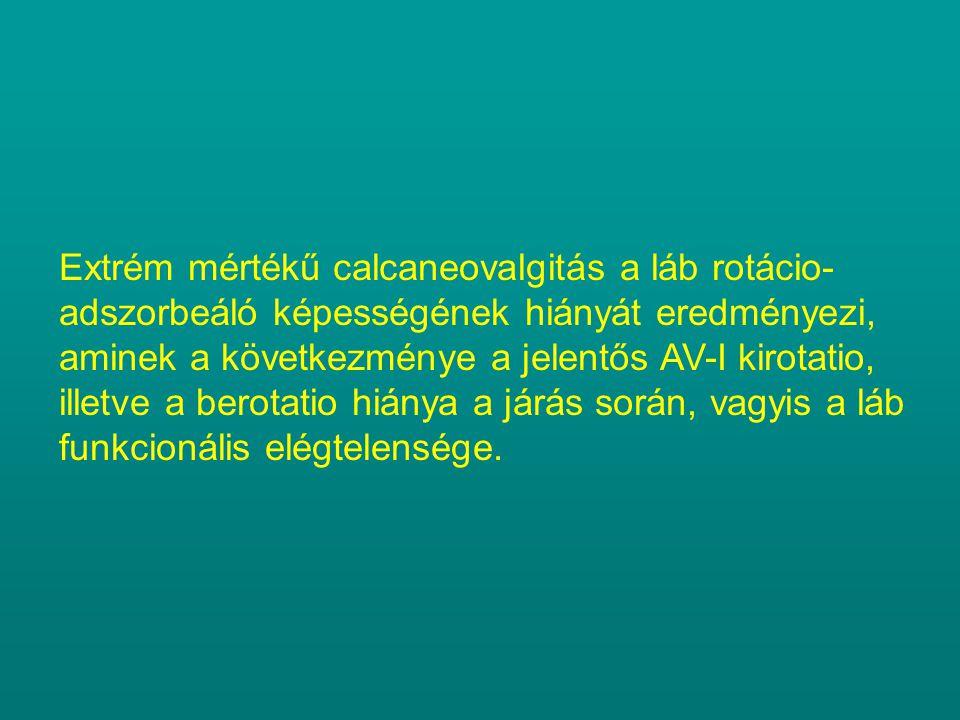 Extrém mértékű calcaneovalgitás a láb rotácio- adszorbeáló képességének hiányát eredményezi, aminek a következménye a jelentős AV-I kirotatio, illetve