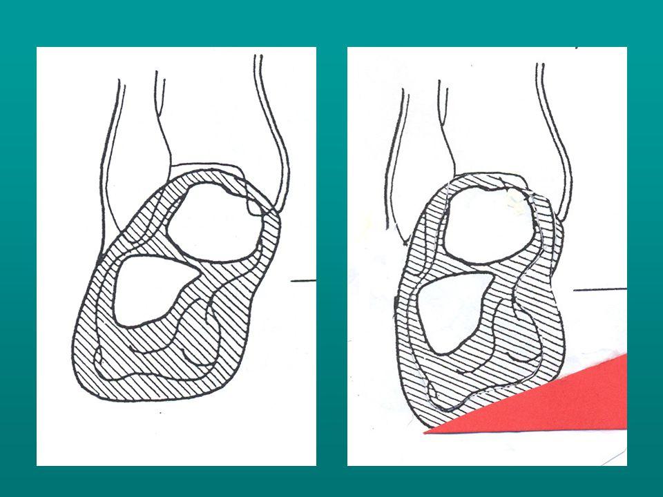 2.Mobilis lábnál, nagyobb sarok valgus esetén sarokfogós betét viseltetése indokolt.