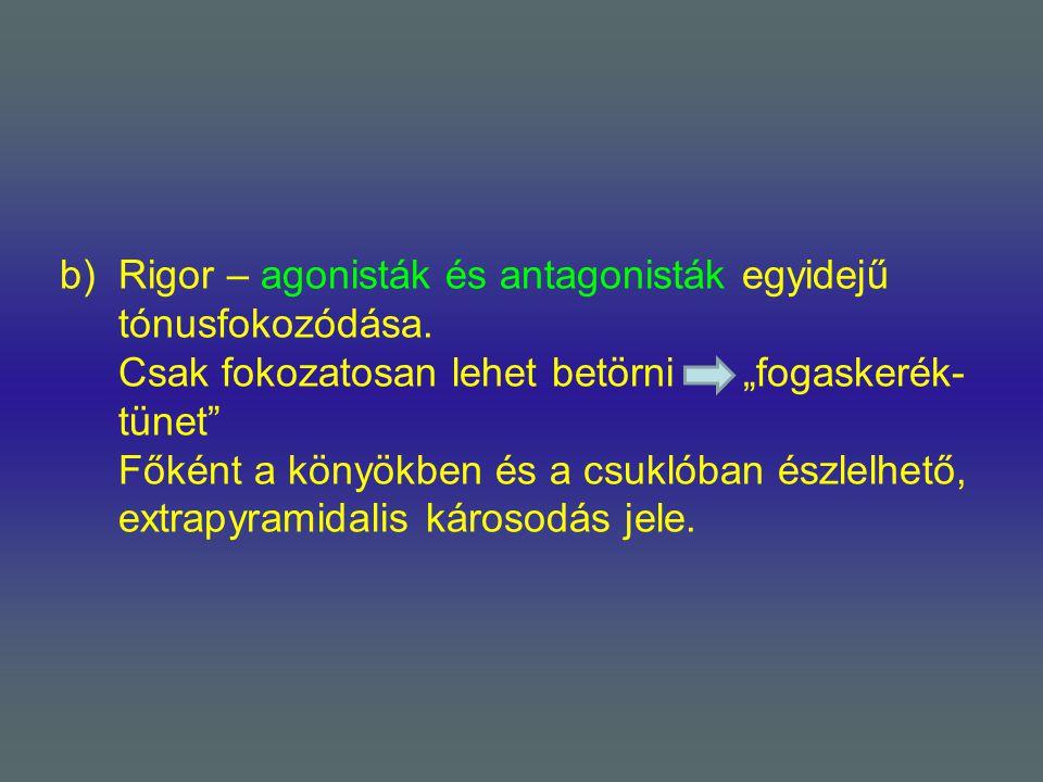 """b)Rigor – agonisták és antagonisták egyidejű tónusfokozódása. Csak fokozatosan lehet betörni """"fogaskerék- tünet"""" Főként a könyökben és a csuklóban ész"""