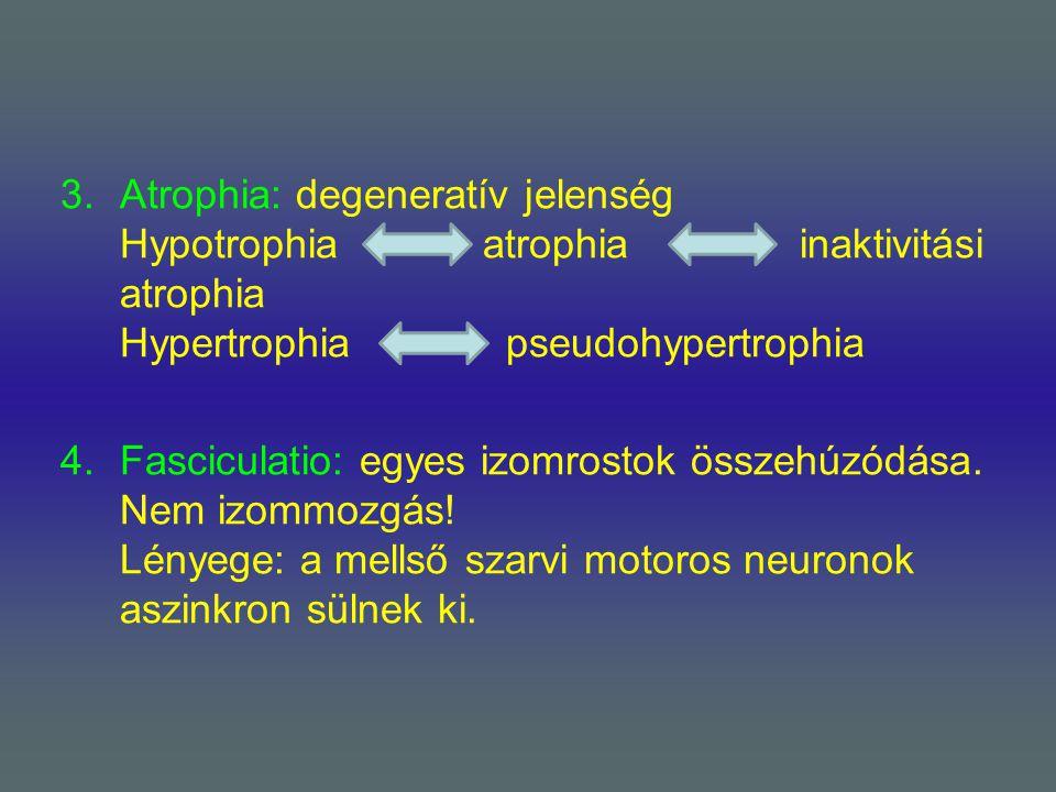 3.Atrophia: degeneratív jelenség Hypotrophiaatrophiainaktivitási atrophia Hypertrophia pseudohypertrophia 4.Fasciculatio: egyes izomrostok összehúzódá
