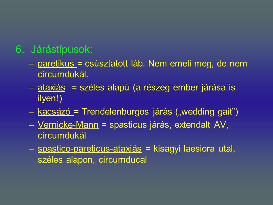 6.Járástípusok: –paretikus = csúsztatott láb. Nem emeli meg, de nem circumdukál. –ataxiás = széles alapú (a részeg ember járása is ilyen!) –kacsázó =