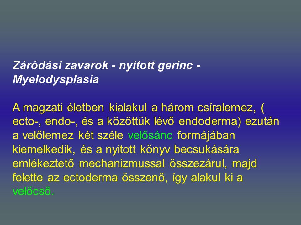Záródási zavarok - nyitott gerinc - Myelodysplasia A magzati életben kialakul a három csíralemez, ( ecto-, endo-, és a közöttük lévő endoderma) ezután