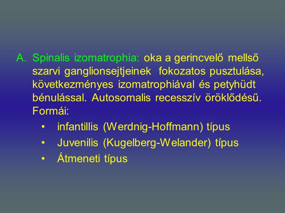 A.Spinalis izomatrophia: oka a gerincvelő mellső szarvi ganglionsejtjeinek fokozatos pusztulása, következményes izomatrophiával és petyhüdt bénulással