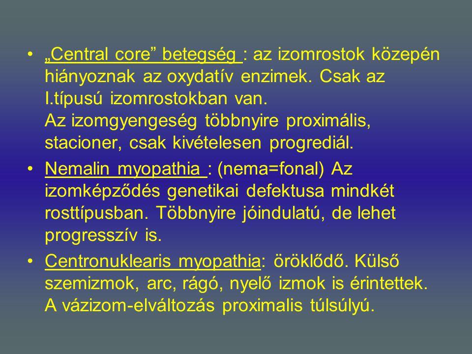 """""""Central core"""" betegség : az izomrostok közepén hiányoznak az oxydatív enzimek. Csak az I.típusú izomrostokban van. Az izomgyengeség többnyire proximá"""
