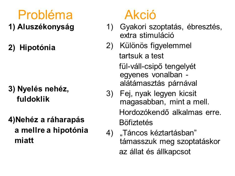Probléma Akció 1) Aluszékonyság 2) Hipotónia 3) Nyelés nehéz, fuldoklik 4)Nehéz a ráharapás a mellre a hipotónia miatt 1)Gyakori szoptatás, ébresztés,