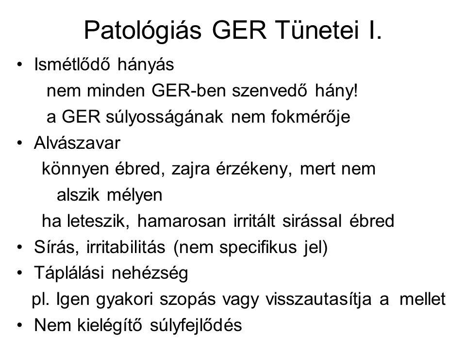 Patológiás GER Tünetei I. Ismétlődő hányás nem minden GER-ben szenvedő hány! a GER súlyosságának nem fokmérője Alvászavar könnyen ébred, zajra érzéken